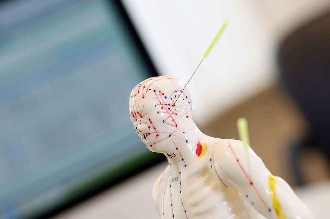 Hausarzt Lage - Dr. Burghardt - Leistungen - Akupunktur